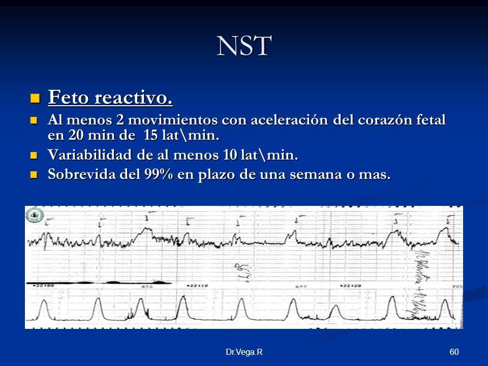 60Dr.Vega.R NST Feto reactivo. Feto reactivo. Al menos 2 movimientos con aceleración del corazón fetal en 20 min de 15 lat\min. Al menos 2 movimientos