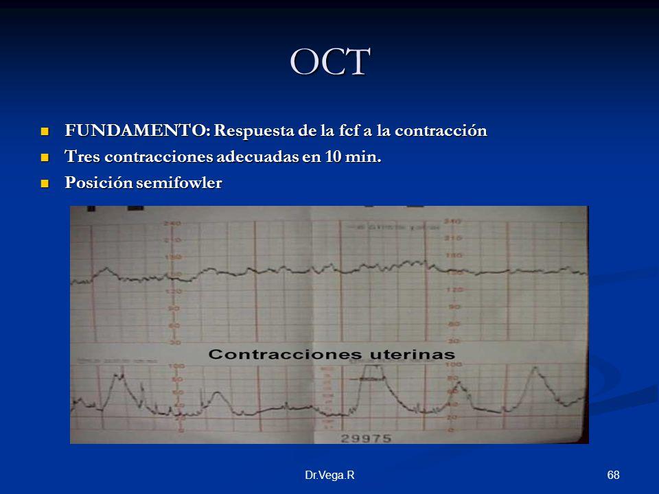 68Dr.Vega.R OCT FUNDAMENTO: Respuesta de la fcf a la contracción FUNDAMENTO: Respuesta de la fcf a la contracción Tres contracciones adecuadas en 10 m