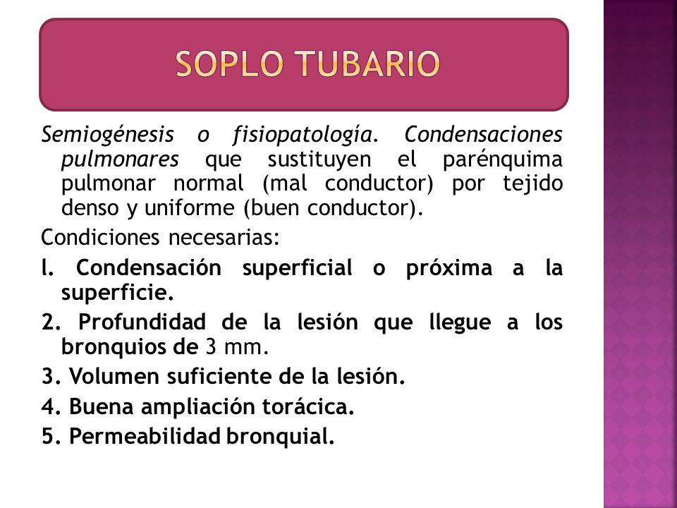 Semiogénesis o fisiopatología. Condensaciones pulmonares que sustituyen el parénquima pulmonar normal (mal conductor) por tejido denso y uniforme (bue