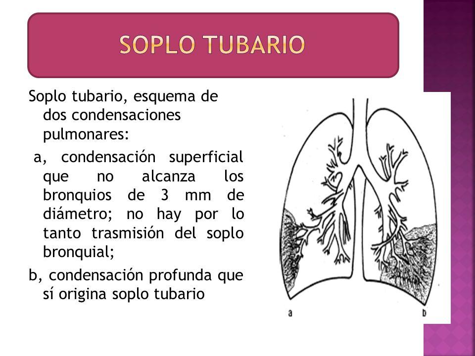 Soplo tubario, esquema de dos condensaciones pulmonares: a, condensación superficial que no alcanza los bronquios de 3 mm de diámetro; no hay por lo t