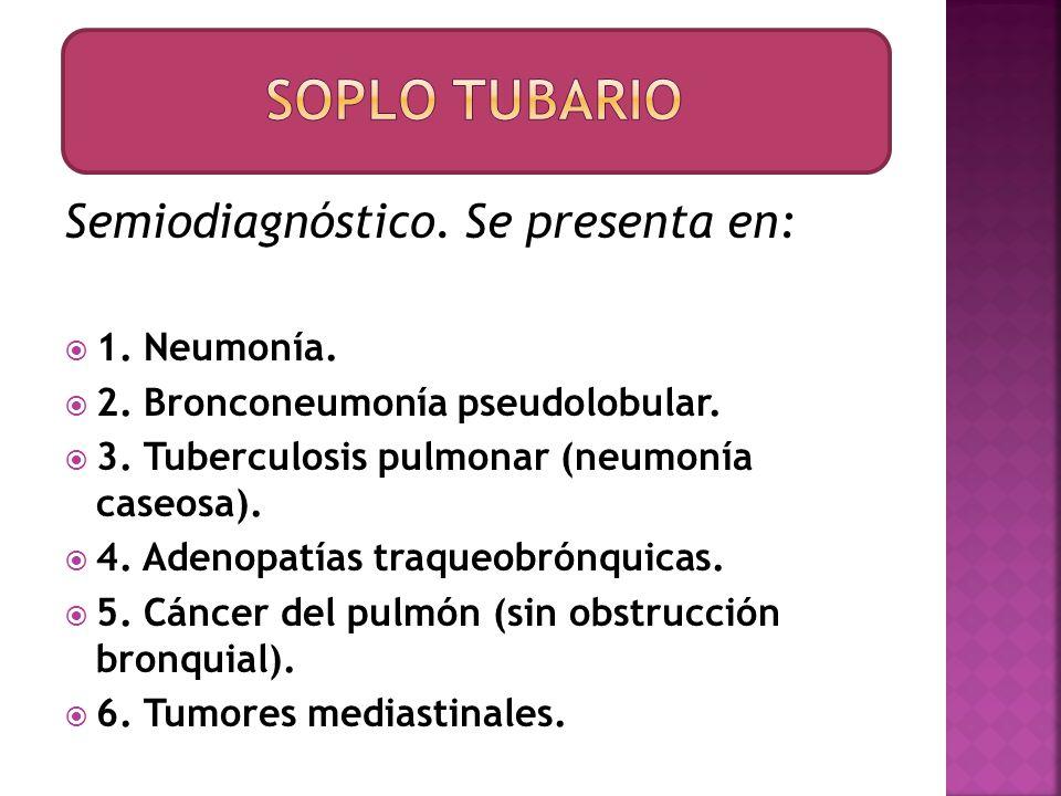 Semiodiagnóstico. Se presenta en: 1. Neumonía. 2. Bronconeumonía pseudolobular. 3. Tuberculosis pulmonar (neumonía caseosa). 4. Adenopatías traqueobró