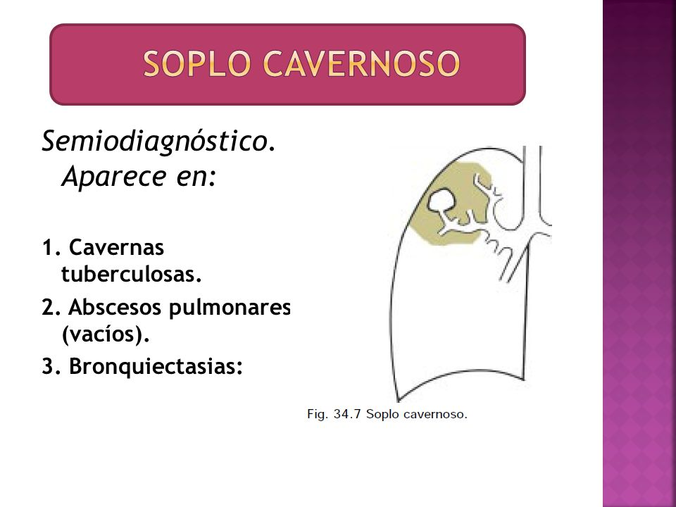 Semiodiagnóstico. Aparece en: 1. Cavernas tuberculosas. 2. Abscesos pulmonares (vacíos). 3. Bronquiectasias: