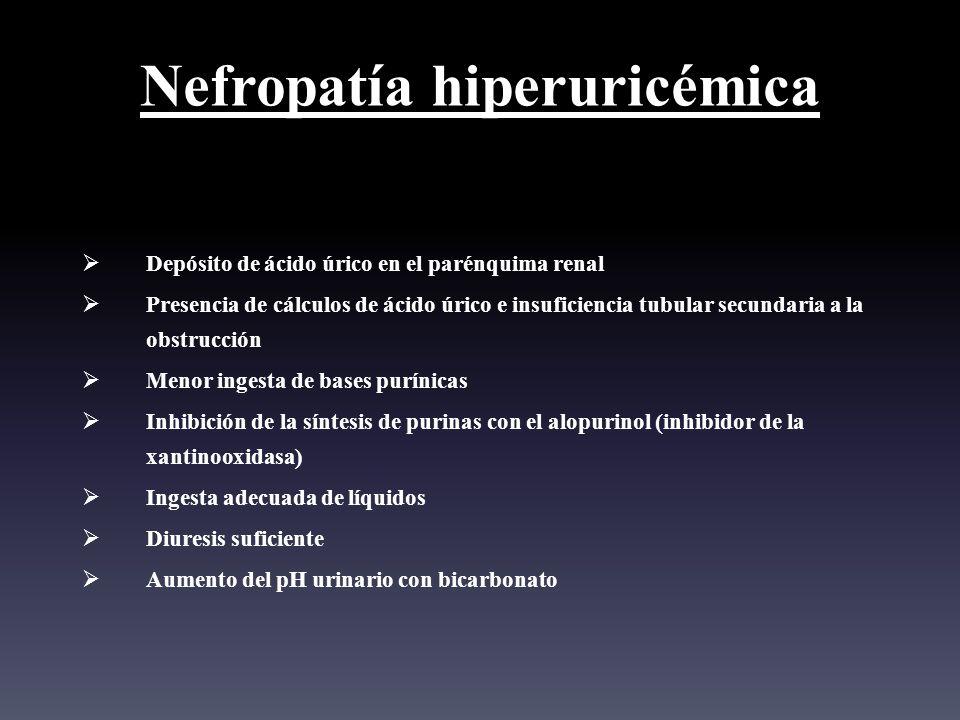 Nefropatía hiperuricémica Depósito de ácido úrico en el parénquima renal Presencia de cálculos de ácido úrico e insuficiencia tubular secundaria a la