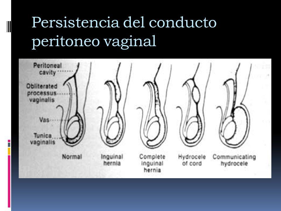 Persistencia del conducto peritoneo vaginal