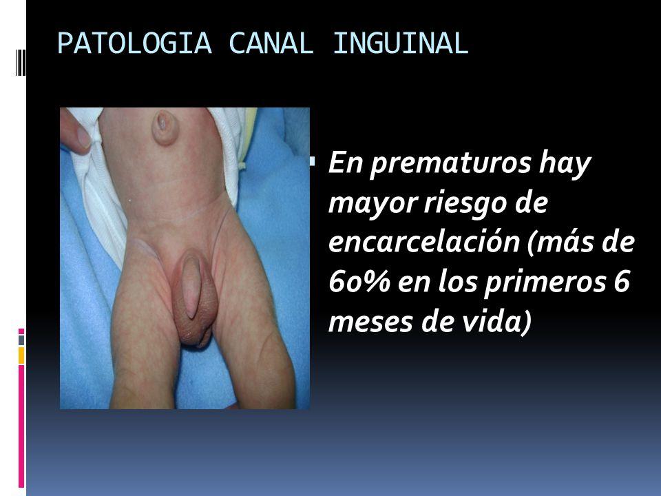 PATOLOGIA CANAL INGUINAL En prematuros hay mayor riesgo de encarcelación (más de 60% en los primeros 6 meses de vida)