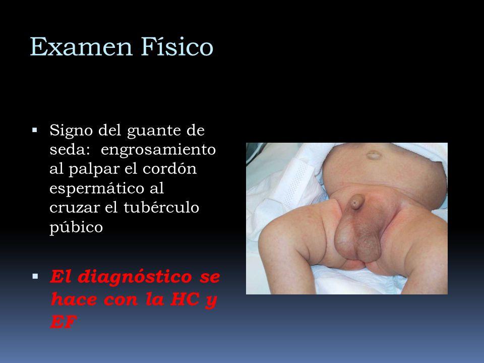 Examen Físico Signo del guante de seda: engrosamiento al palpar el cordón espermático al cruzar el tubérculo púbico El diagnóstico se hace con la HC y