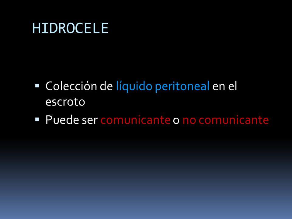 HIDROCELE Colección de líquido peritoneal en el escroto Puede ser comunicante o no comunicante