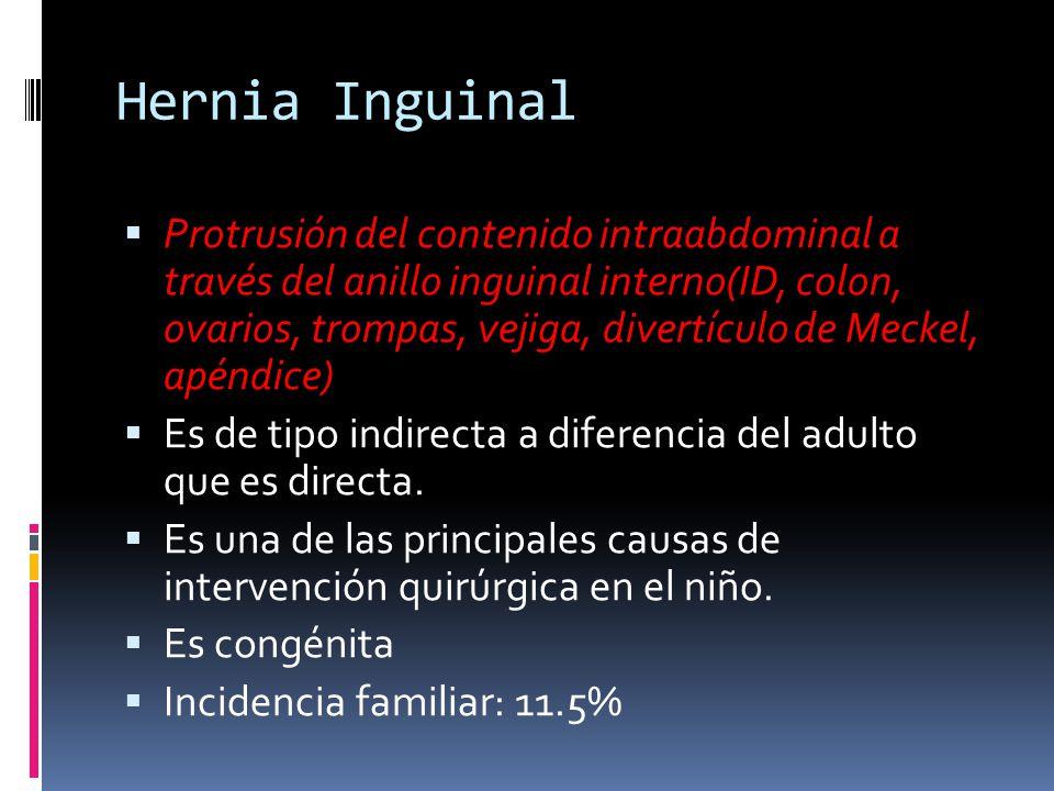 Hernia Inguinal Protrusión del contenido intraabdominal a través del anillo inguinal interno(ID, colon, ovarios, trompas, vejiga, divertículo de Meckel, apéndice) Es de tipo indirecta a diferencia del adulto que es directa.