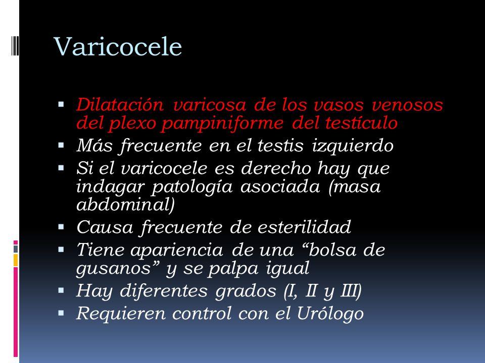 Varicocele Dilatación varicosa de los vasos venosos del plexo pampiniforme del testículo Más frecuente en el testis izquierdo Si el varicocele es derecho hay que indagar patología asociada (masa abdominal) Causa frecuente de esterilidad Tiene apariencia de una bolsa de gusanos y se palpa igual Hay diferentes grados (I, II y III) Requieren control con el Urólogo