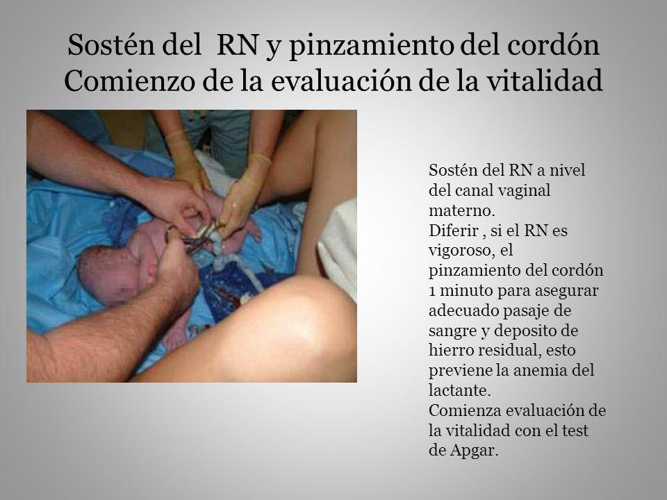 Sostén del RN y pinzamiento del cordón Comienzo de la evaluación de la vitalidad Sostén del RN a nivel del canal vaginal materno. Diferir, si el RN es