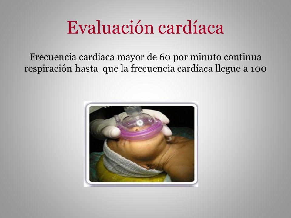 Evaluación cardíaca Frecuencia cardiaca mayor de 60 por minuto continua respiración hasta que la frecuencia cardíaca llegue a 100