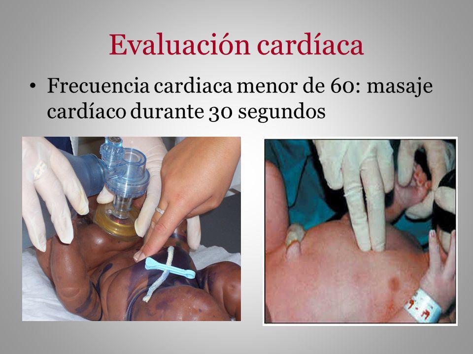 Evaluación cardíaca Frecuencia cardiaca menor de 60: masaje cardíaco durante 30 segundos