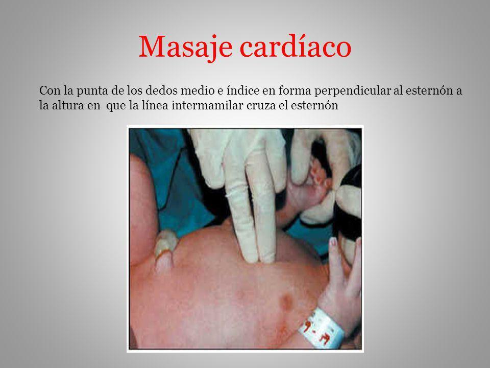 Masaje cardíaco Con la punta de los dedos medio e índice en forma perpendicular al esternón a la altura en que la línea intermamilar cruza el esternón