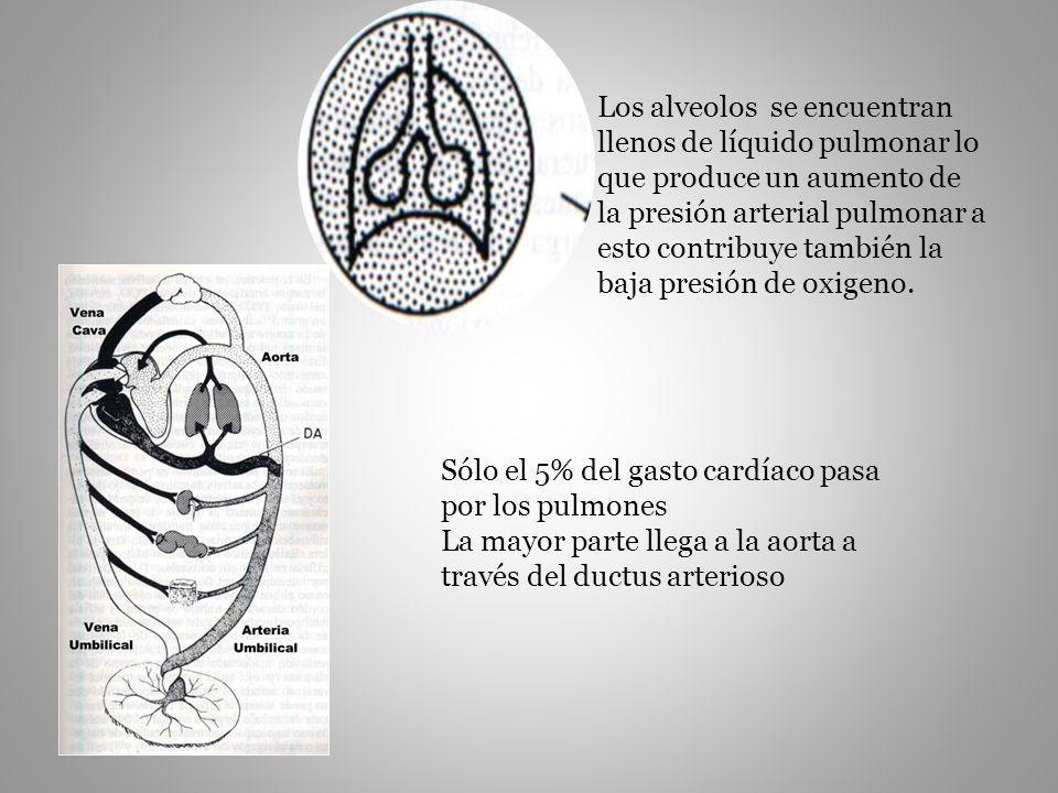 Los alveolos se encuentran llenos de líquido pulmonar lo que produce un aumento de la presión arterial pulmonar a esto contribuye también la baja pres