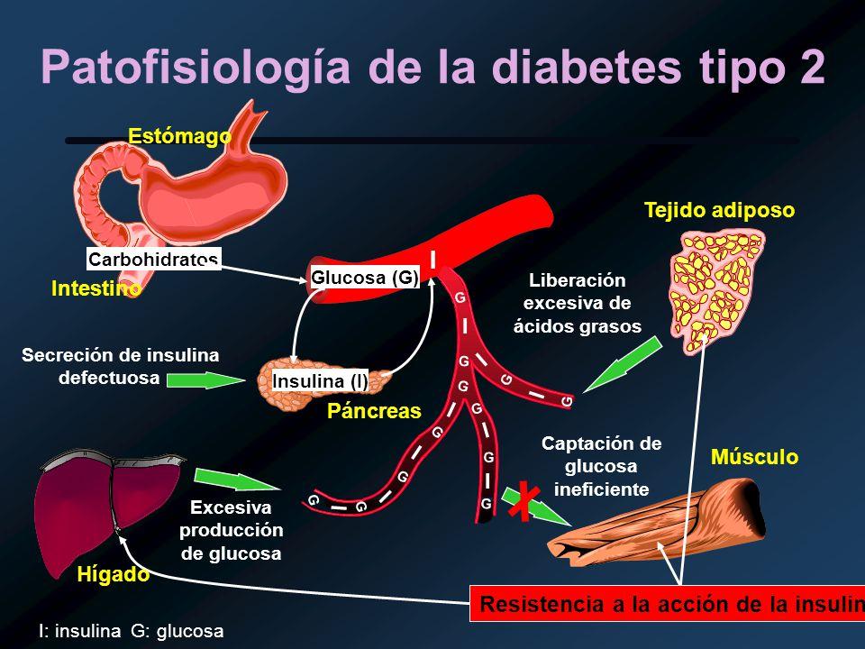Patofisiología de la diabetes tipo 2 Glucosa (G) Carbohidratos Insulina (I) I I I I I I I I G G G G G G G G I G G G Secreción de insulina defectuosa E