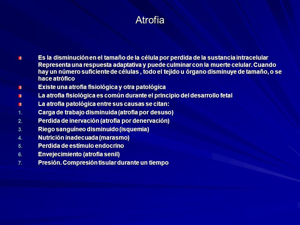 Atrofia Es la disminución en el tamaño de la célula por perdida de la sustancia intracelular Representa una respuesta adaptativa y puede culminar con