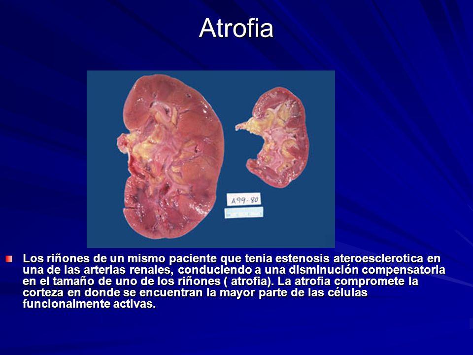 Atrofia Los riñones de un mismo paciente que tenia estenosis ateroesclerotica en una de las arterias renales, conduciendo a una disminución compensato