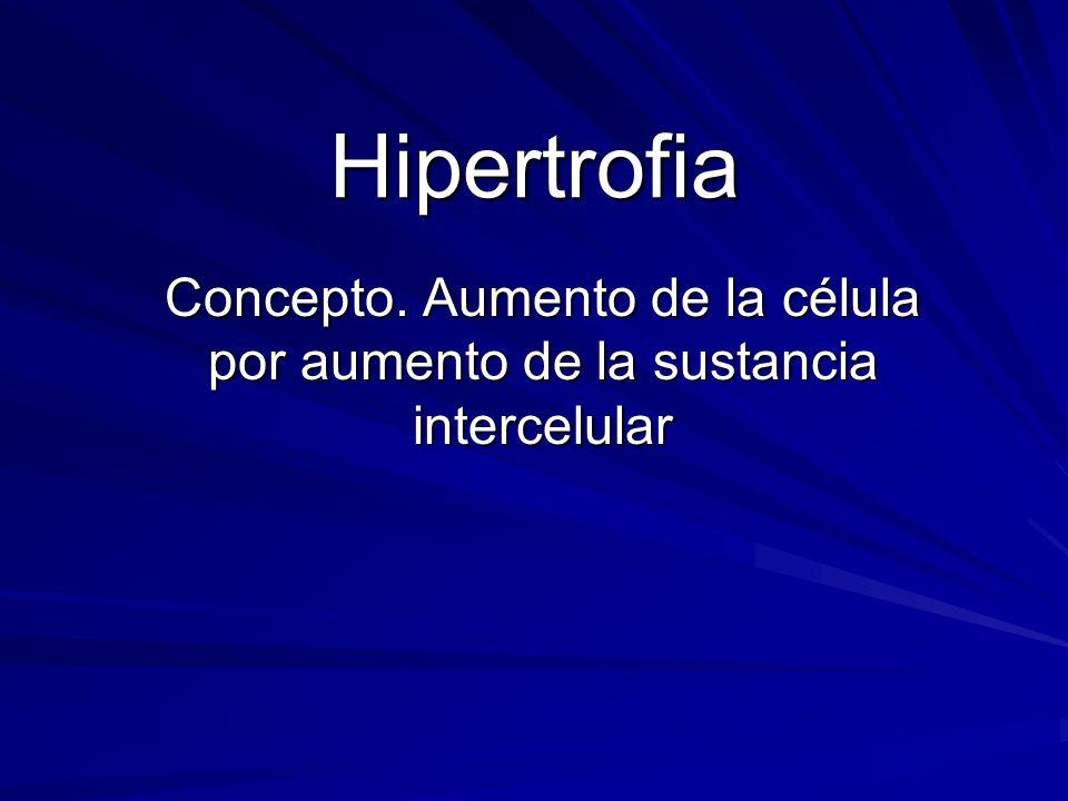 Concepto. Aumento de la célula por aumento de la sustancia intercelular Hipertrofia
