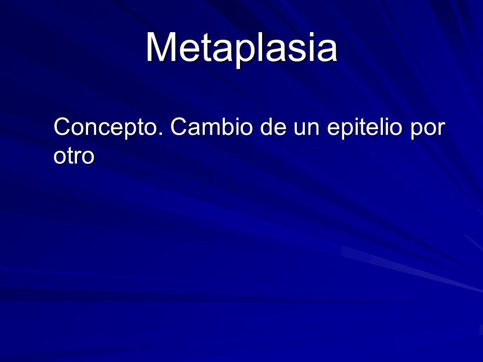 Concepto. Cambio de un epitelio por otro Metaplasia