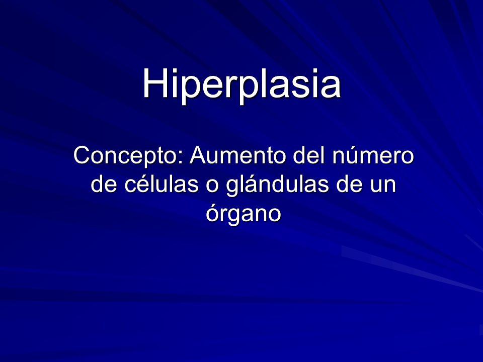 Concepto: Aumento del número de células o glándulas de un órgano Hiperplasia