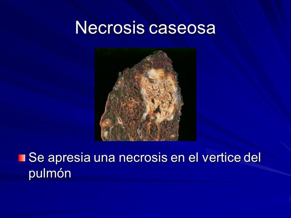 Necrosis caseosa Se apresia una necrosis en el vertice del pulmón