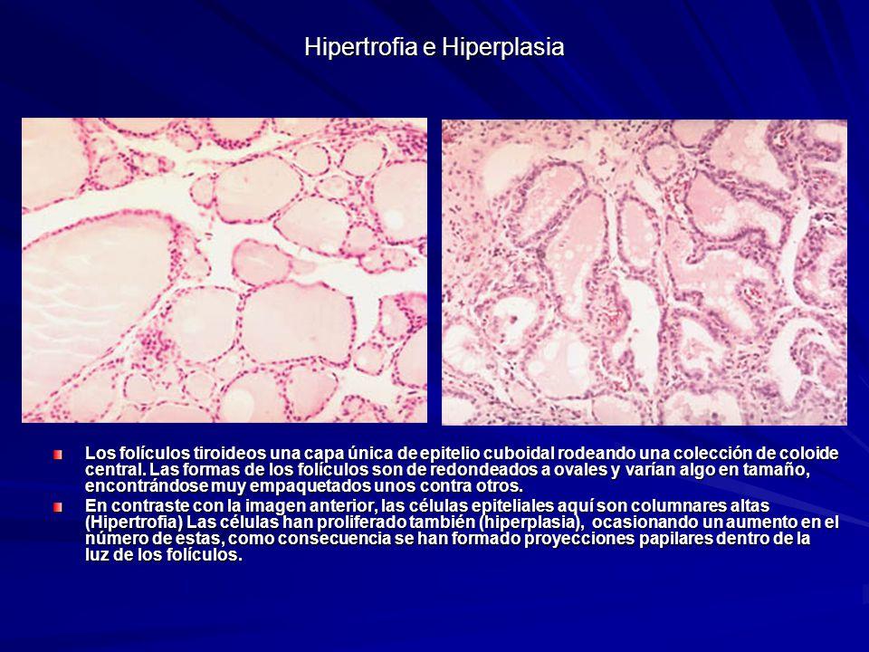 Hipertrofia e Hiperplasia Los folículos tiroideos una capa única de epitelio cuboidal rodeando una colección de coloide central. Las formas de los fol