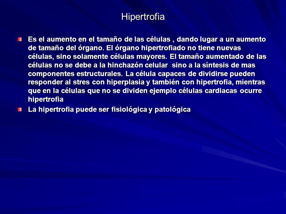 Hipertrofia Es el aumento en el tamaño de las células, dando lugar a un aumento de tamaño del órgano. El órgano hipertrofiado no tiene nuevas células,