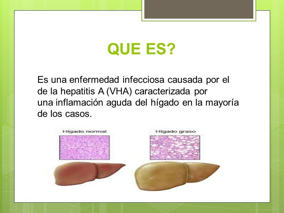 QUE ES? Es una enfermedad infecciosa causada por el de la hepatitis A (VHA) caracterizada por una inflamación aguda del hígado en la mayoría de los ca