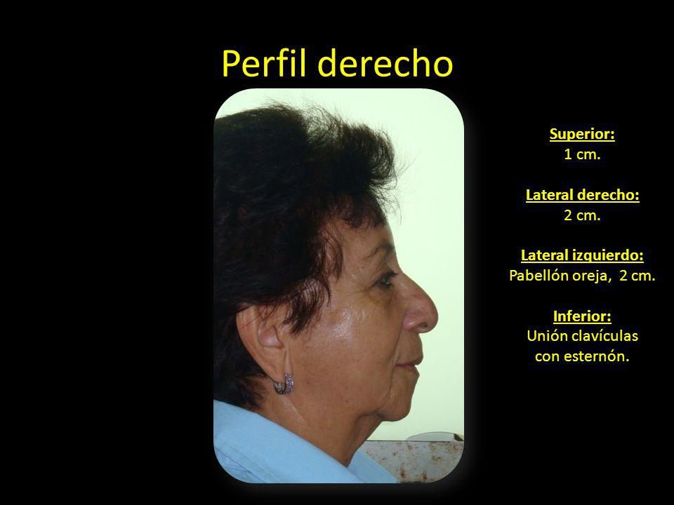 Perfil derecho Superior: 1 cm. Lateral derecho: 2 cm. Lateral izquierdo: Pabellón oreja, 2 cm. Inferior: Unión clavículas con esternón.