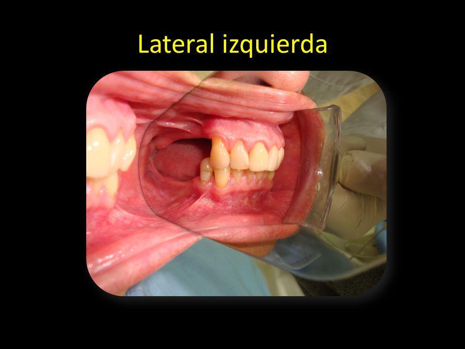 Lateral izquierda