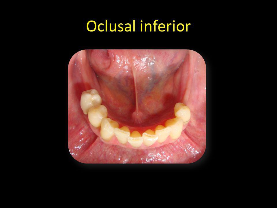 Oclusal inferior