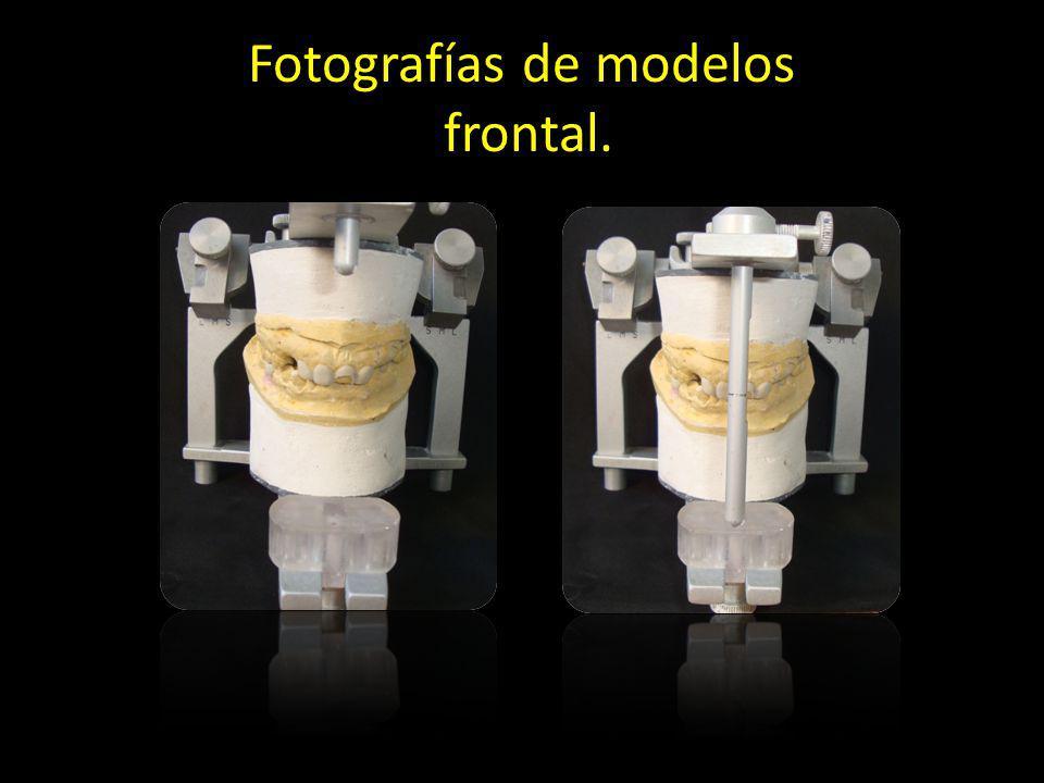 Fotografías de modelos frontal.