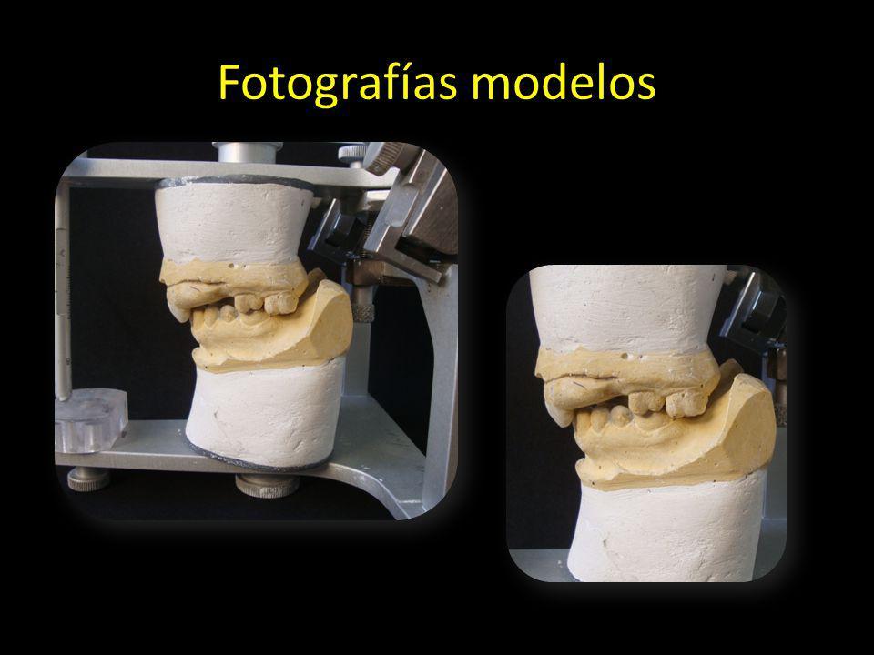 Fotografías modelos