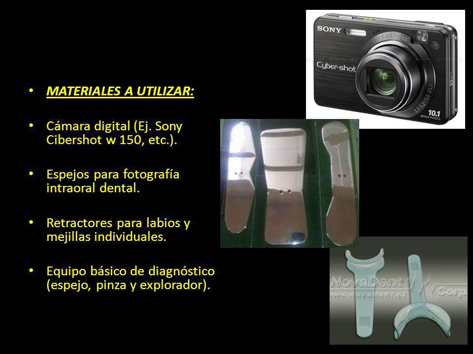 MATERIALES A UTILIZAR: Cámara digital (Ej. Sony Cibershot w 150, etc.). Espejos para fotografía intraoral dental. Retractores para labios y mejillas i
