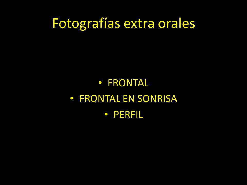 Fotografías extra orales FRONTAL FRONTAL EN SONRISA PERFIL