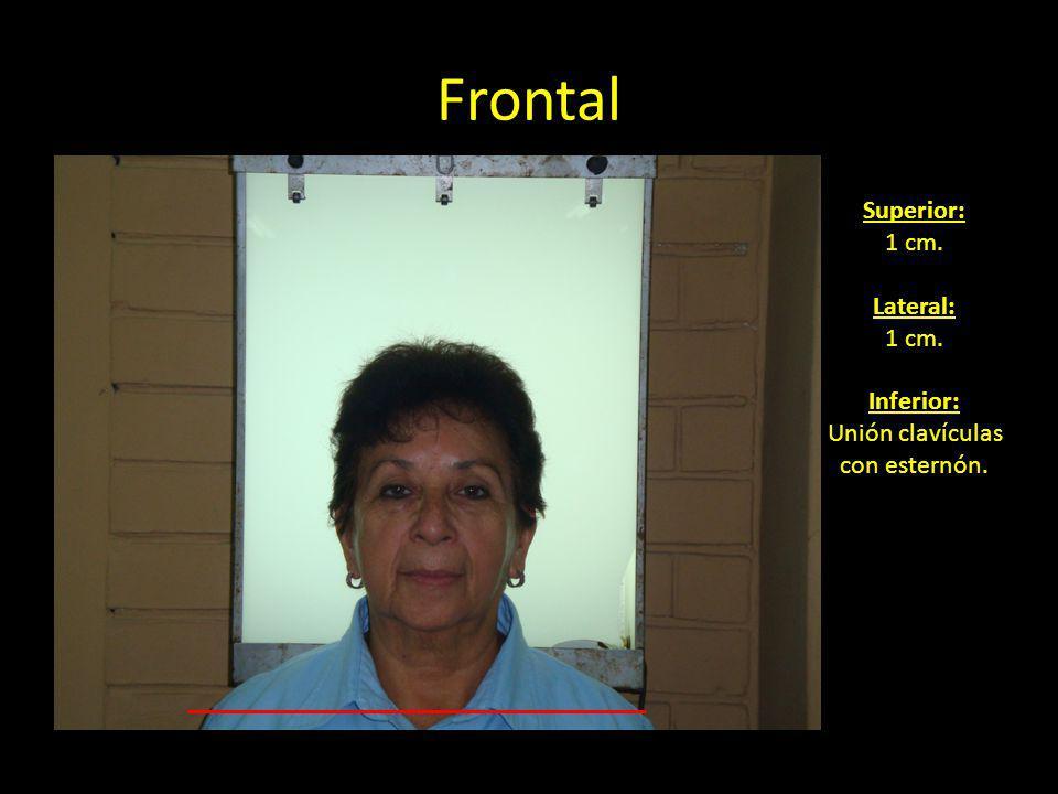 Frontal Superior: 1 cm. Lateral: 1 cm. Inferior: Unión clavículas con esternón.