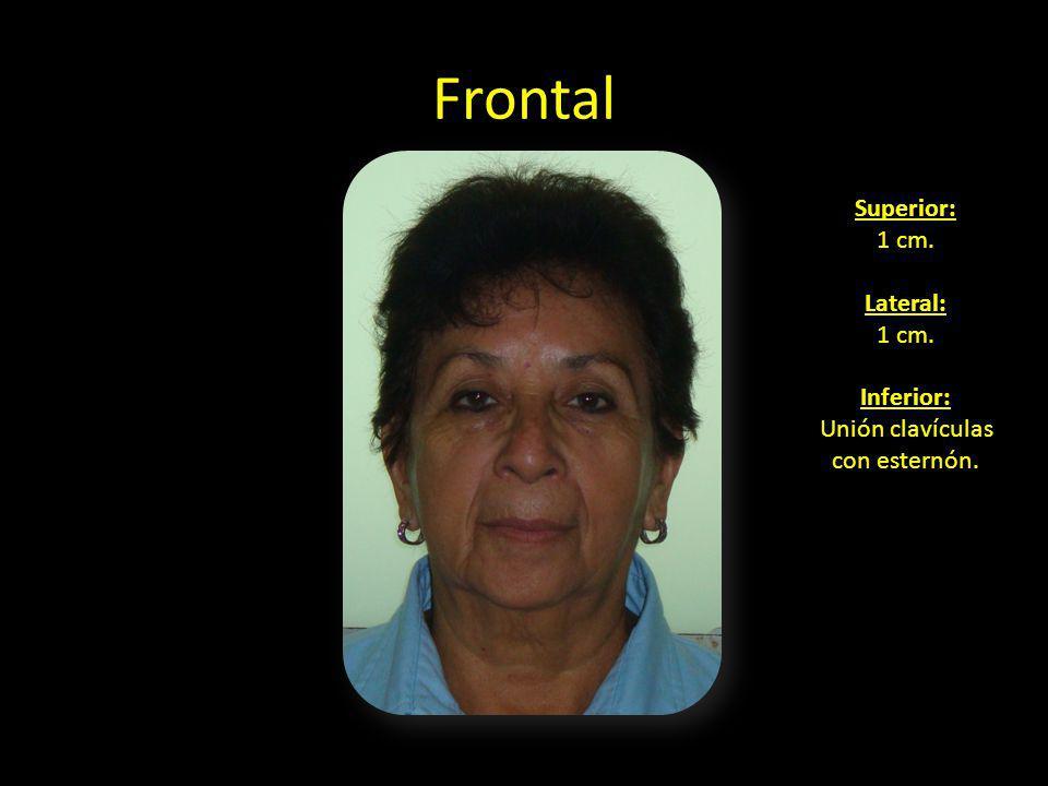 Frontal en sonrisa Superior: 1 cm. Lateral: 1 cm. Inferior: Unión clavículas con esternón.