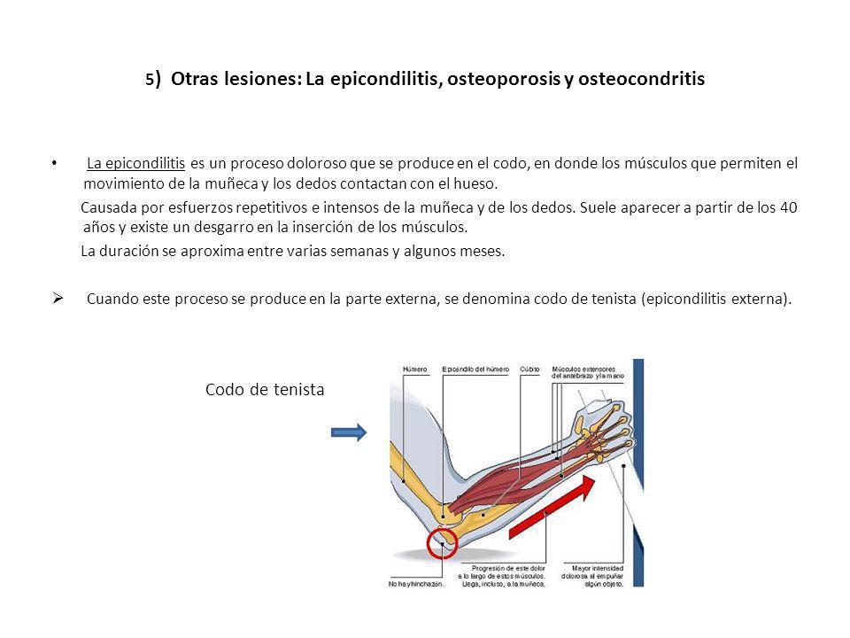 5 ) Otras lesiones: La epicondilitis, osteoporosis y osteocondritis La epicondilitis es un proceso doloroso que se produce en el codo, en donde los mú