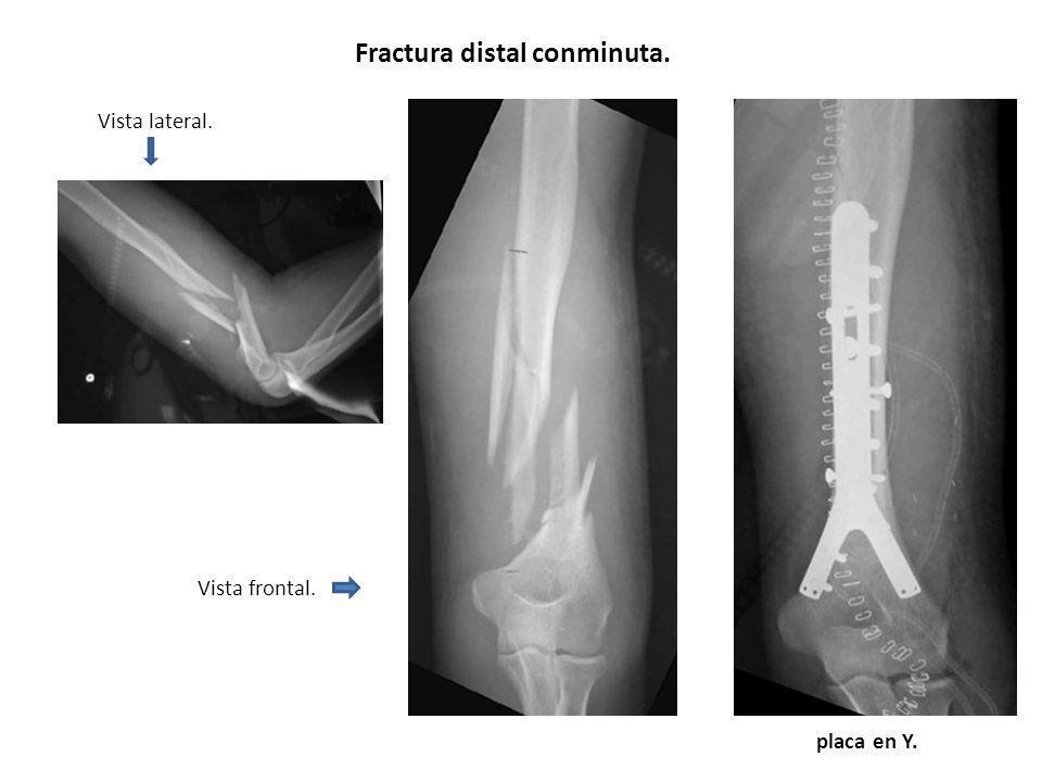 Vista lateral. Vista frontal. Fractura distal conminuta. placa en Y.