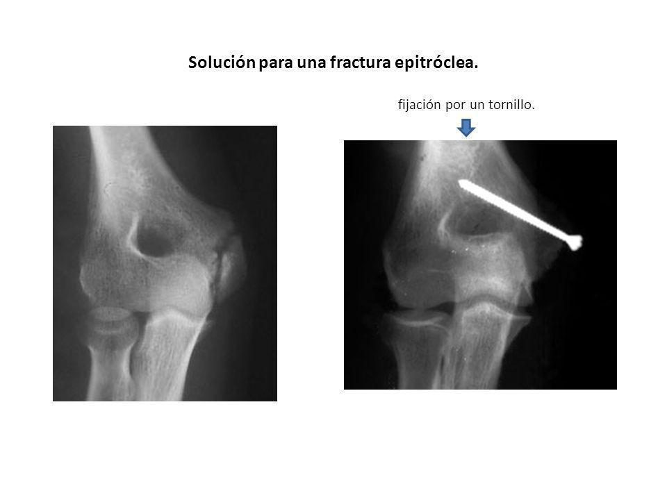 Solución para una fractura epitróclea. fijación por un tornillo.