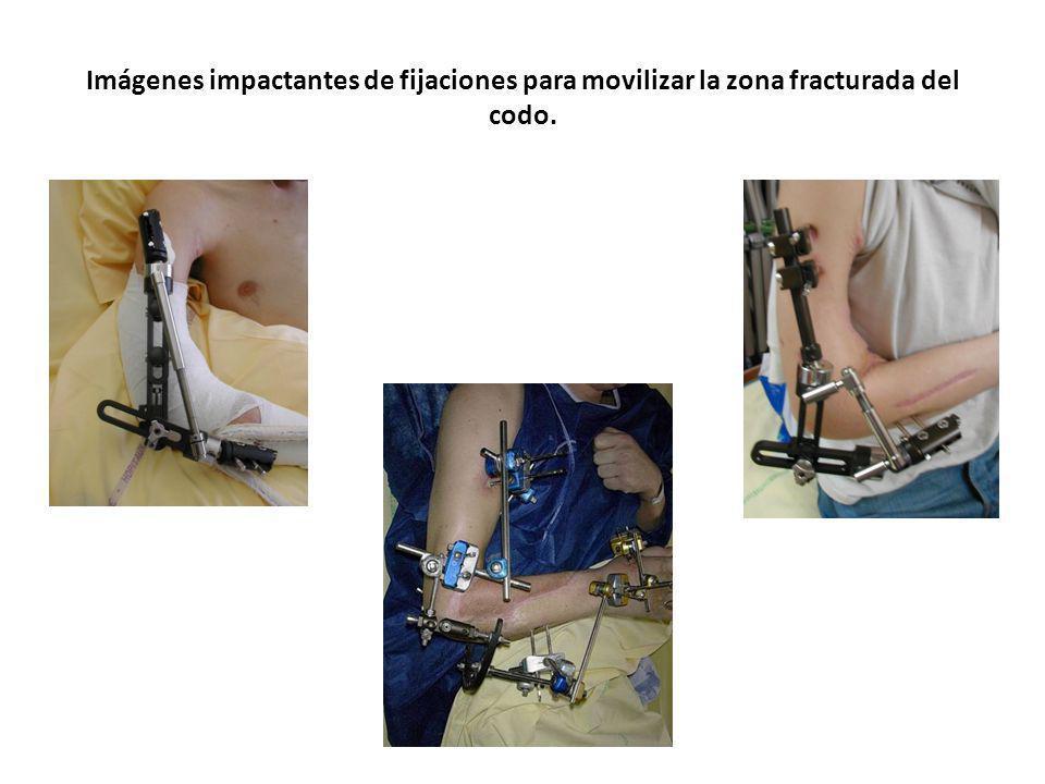 Imágenes impactantes de fijaciones para movilizar la zona fracturada del codo. S