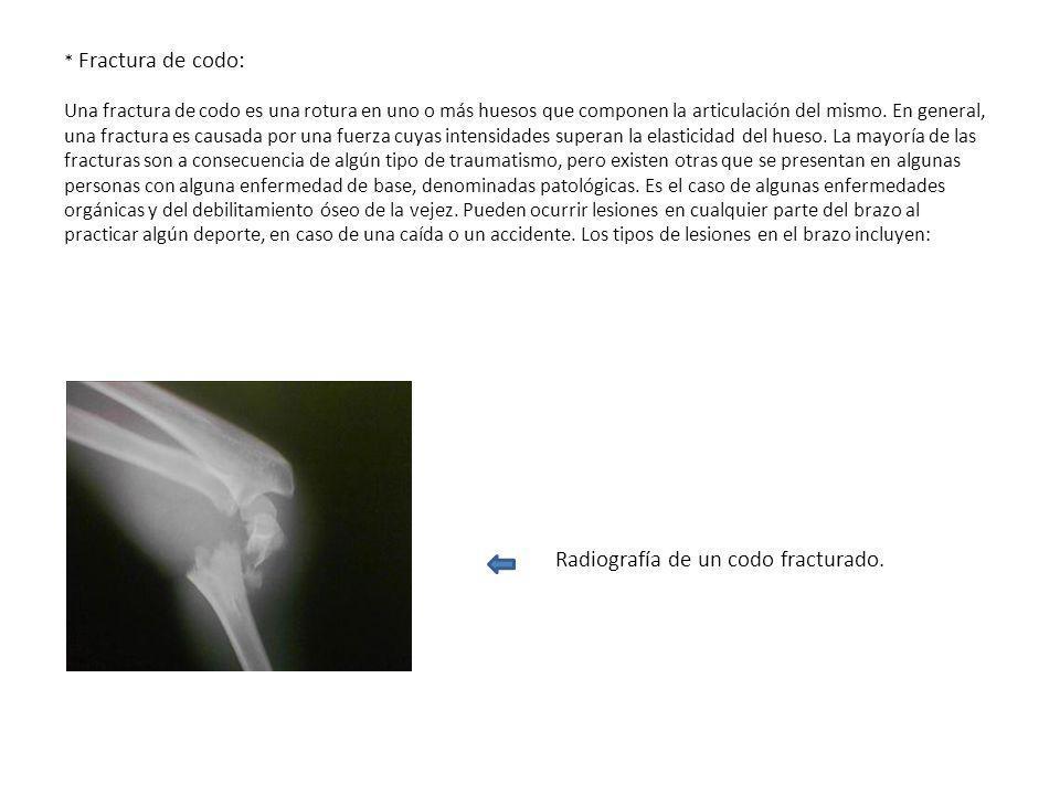 * Fractura de codo: Una fractura de codo es una rotura en uno o más huesos que componen la articulación del mismo. En general, una fractura es causada