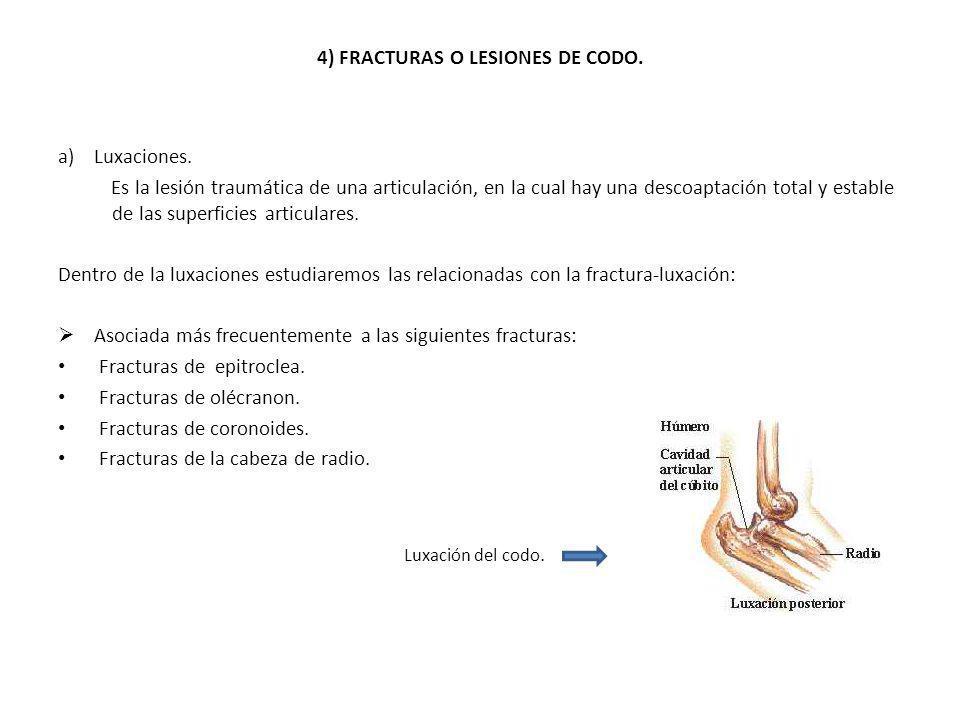 4) FRACTURAS O LESIONES DE CODO. a)Luxaciones. Es la lesión traumática de una articulación, en la cual hay una descoaptación total y estable de las su