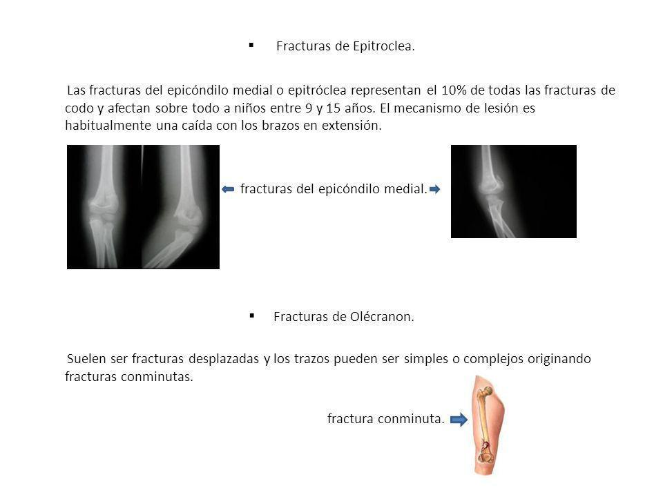 Fracturas de Epitroclea. Las fracturas del epicóndilo medial o epitróclea representan el 10% de todas las fracturas de codo y afectan sobre todo a niñ