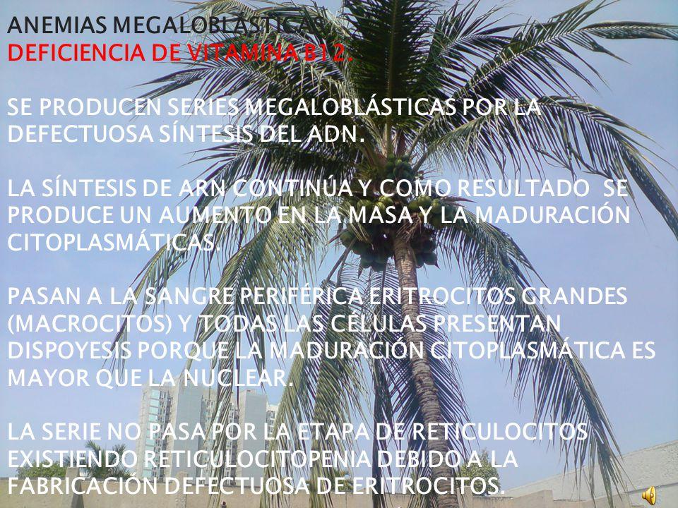 ANEMIAS MEGALOBLÁSTICAS.DEFICIENCIA DE VITAMINA B12.