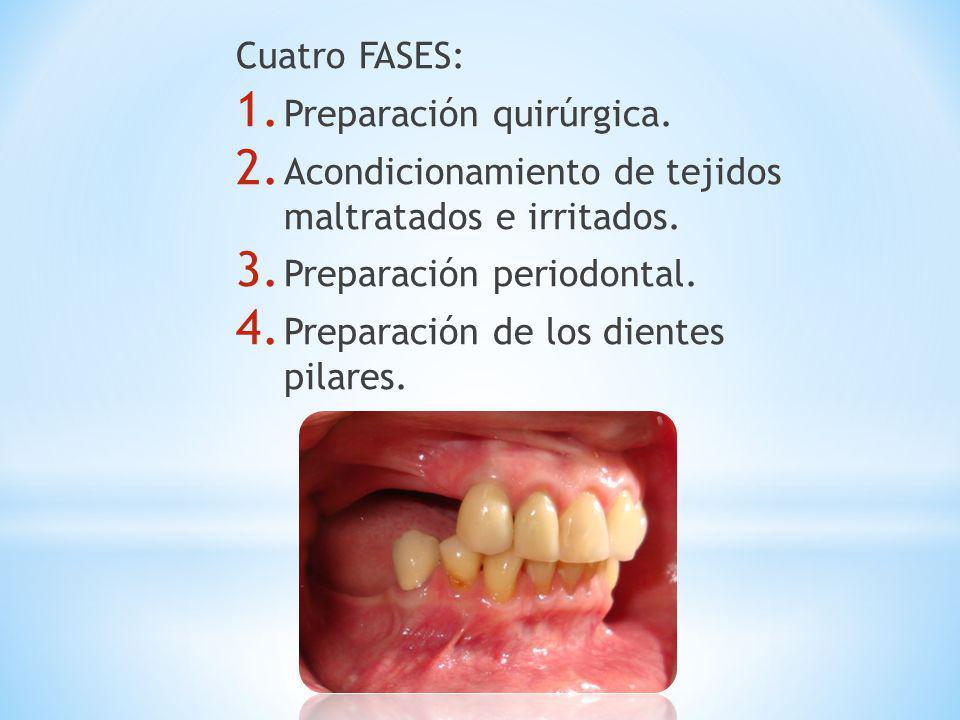 Cuatro FASES: 1. Preparación quirúrgica. 2. Acondicionamiento de tejidos maltratados e irritados. 3. Preparación periodontal. 4. Preparación de los di