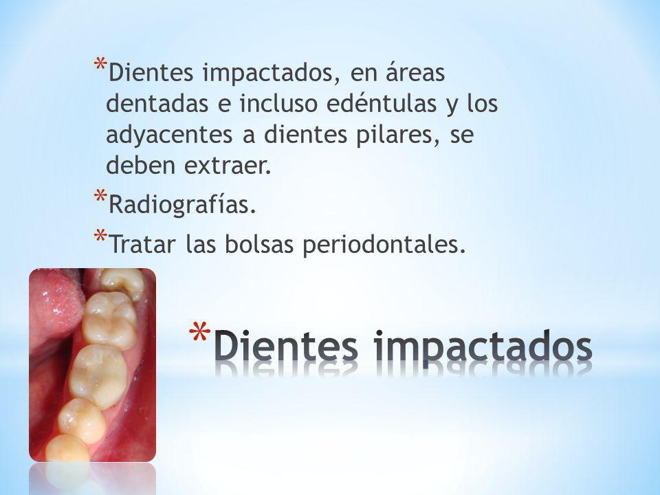 * Dientes impactados, en áreas dentadas e incluso edéntulas y los adyacentes a dientes pilares, se deben extraer. * Radiografías. * Tratar las bolsas