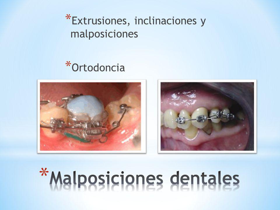 * Extrusiones, inclinaciones y malposiciones * Ortodoncia