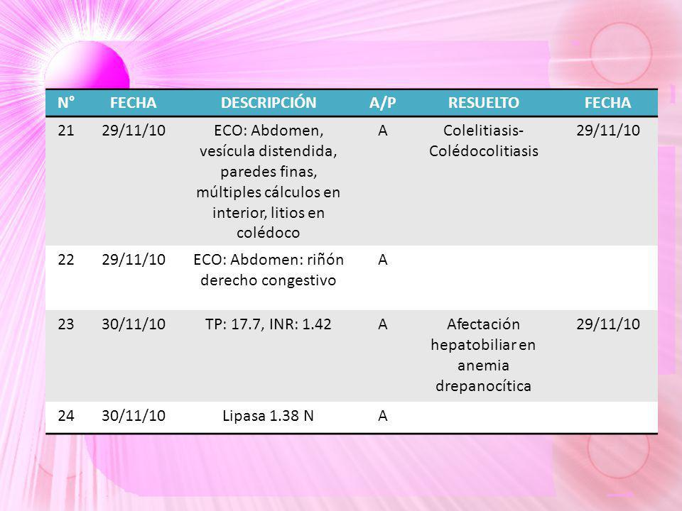 N°FECHADESCRIPCIÓNA/PRESUELTOFECHA 2129/11/10ECO: Abdomen, vesícula distendida, paredes finas, múltiples cálculos en interior, litios en colédoco AColelitiasis- Colédocolitiasis 29/11/10 2229/11/10ECO: Abdomen: riñón derecho congestivo A 2330/11/10TP: 17.7, INR: 1.42AAfectación hepatobiliar en anemia drepanocítica 29/11/10 2430/11/10Lipasa 1.38 NA
