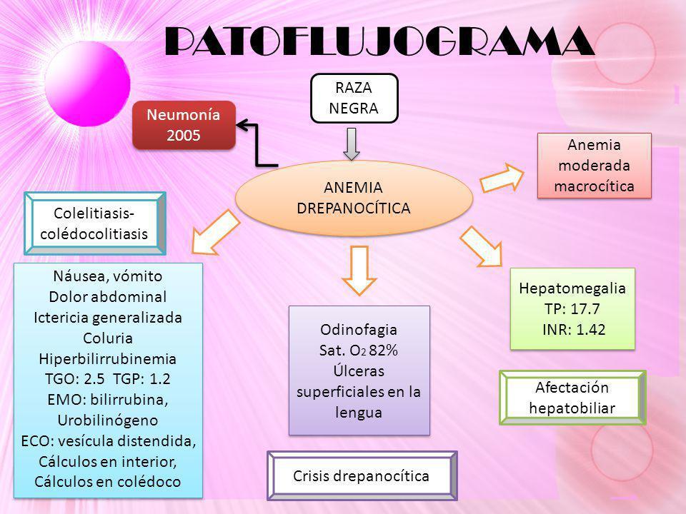 PATOFLUJOGRAMA RAZA NEGRA ANEMIA DREPANOCÍTICA Náusea, vómito Dolor abdominal Ictericia generalizada Coluria Hiperbilirrubinemia TGO: 2.5 TGP: 1.2 EMO: bilirrubina, Urobilinógeno ECO: vesícula distendida, Cálculos en interior, Cálculos en colédoco Náusea, vómito Dolor abdominal Ictericia generalizada Coluria Hiperbilirrubinemia TGO: 2.5 TGP: 1.2 EMO: bilirrubina, Urobilinógeno ECO: vesícula distendida, Cálculos en interior, Cálculos en colédoco Odinofagia Sat.